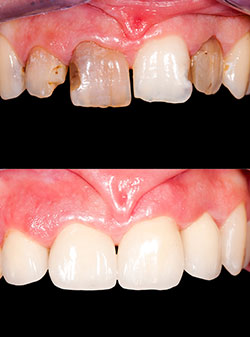 cosmetic-chips-and-gaps