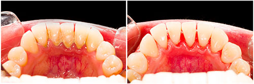 gum-therapy-before-and-after
