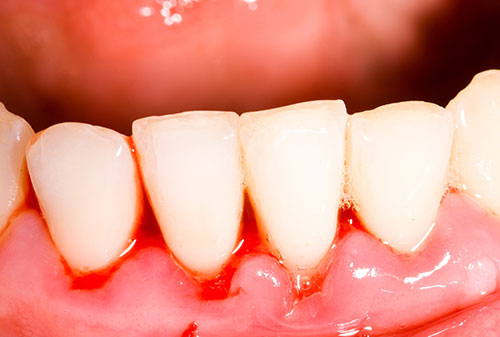 gum-therapy-early-gingivitis