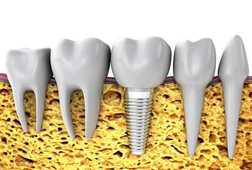 missing-teeth-implant