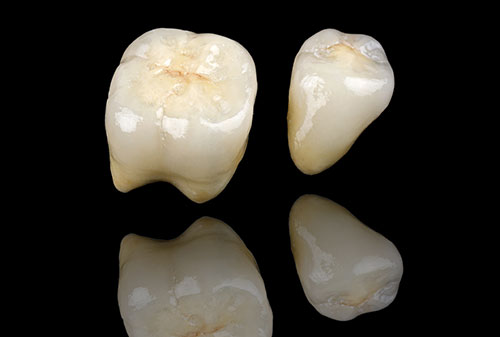 dental-inno-porcelain-crowns